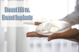 Breast Lift | Breast Implants | Dr. Rimma Finkel MD