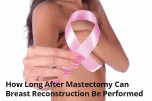 How Long After Mastectomy Can Breast Reconstruction Be Performed - Dr. Finkel MD