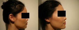 Dermal Fillers for Nose