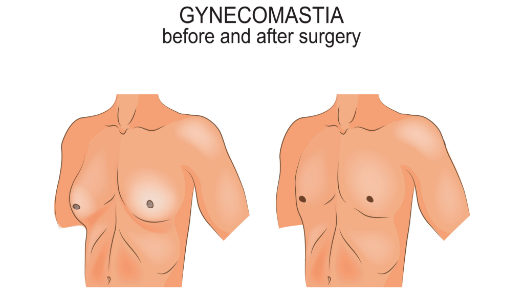 5 Tips to Prepare For Male Breast Reduction Surgery