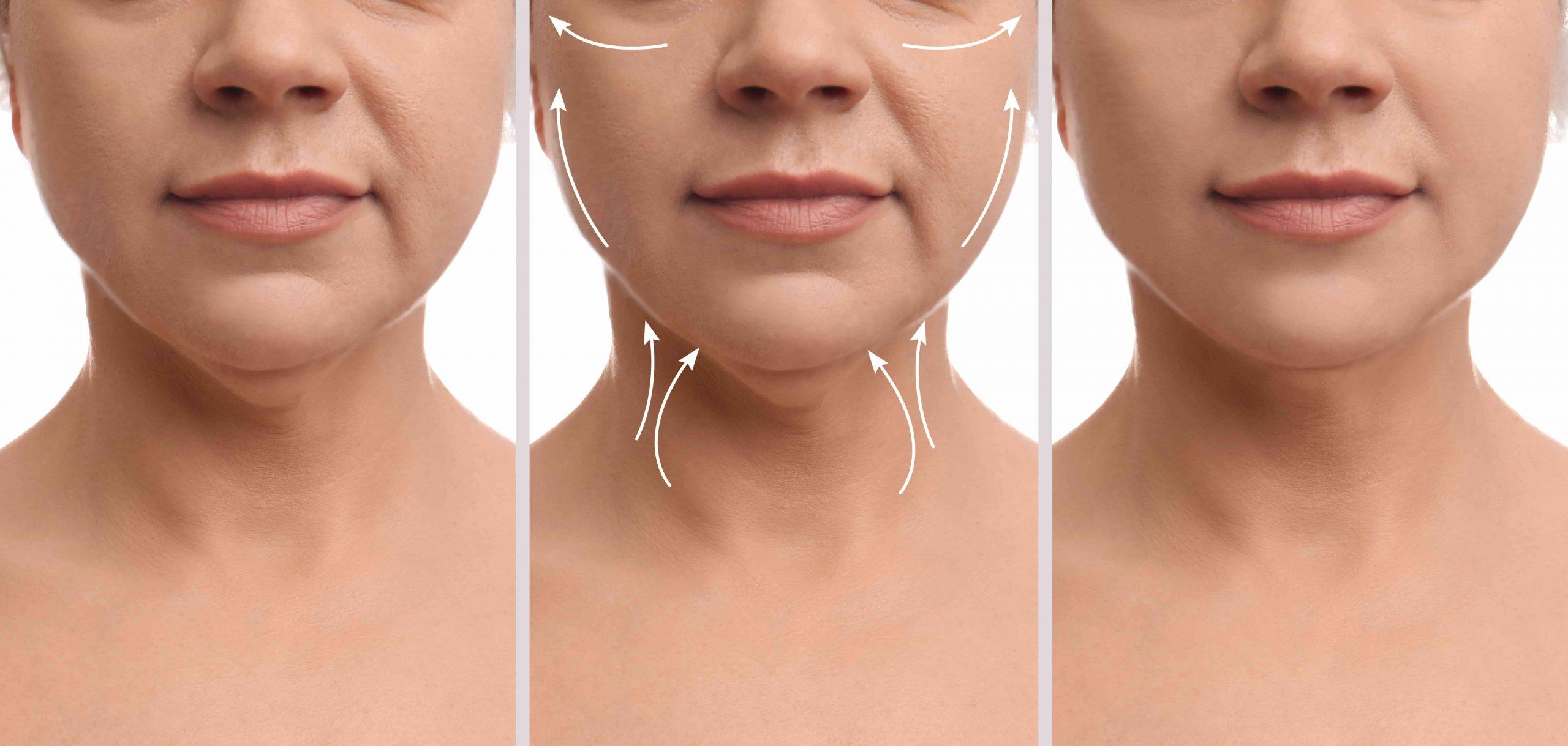 choose a neck lift over a facelift